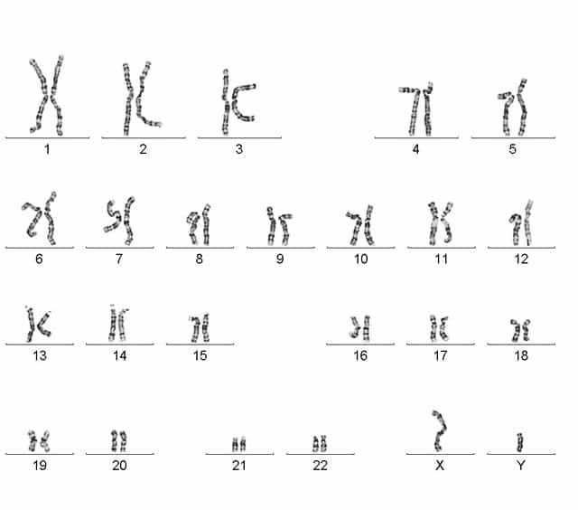 Хромосомы человека сперма