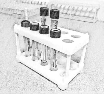 Лабораторная диагностика при лечении мужского бесплодия